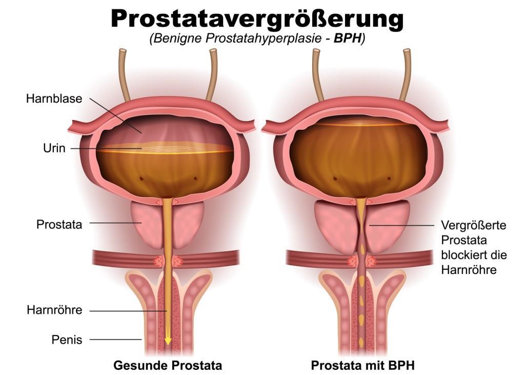 Prostata (Vorsteherdrüse) - Männliches Geschlechtsorgan - andrologie ...