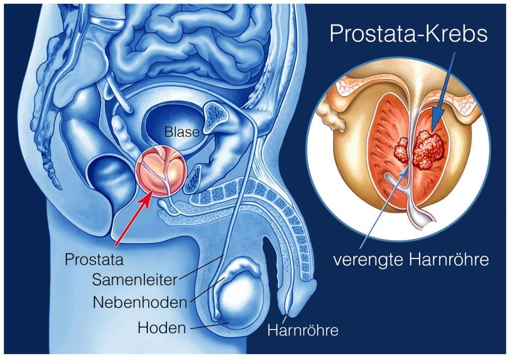 prostatakrebs ursachen symptome