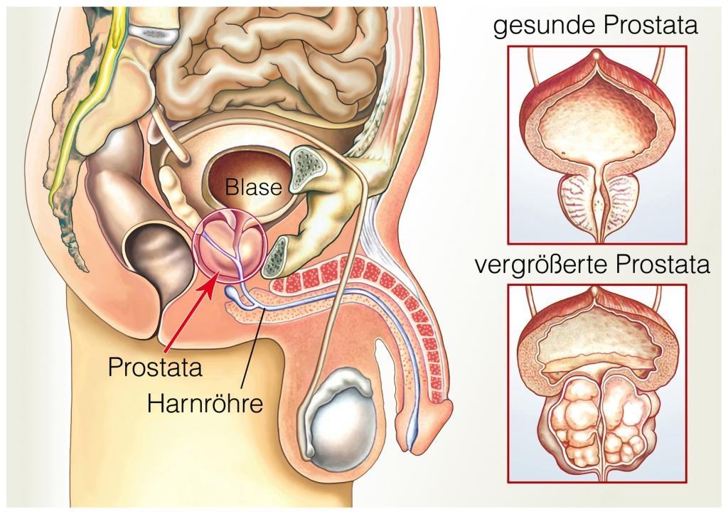 Urológiai Klinika · Tantárgyak · Urologie · PTE ÁOK